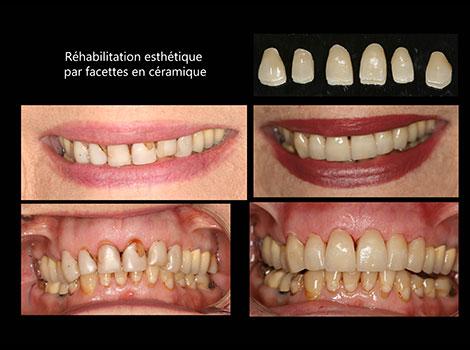 facettes-et-couronnes-(2)
