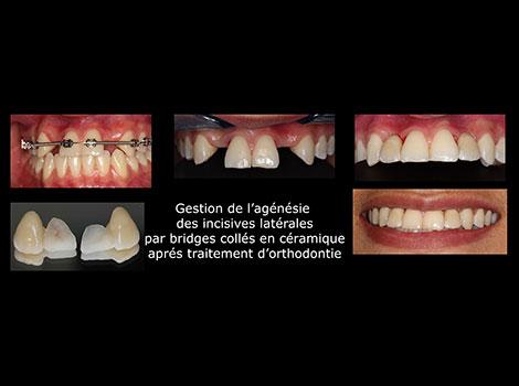 facettes-et-couronnes-(5)