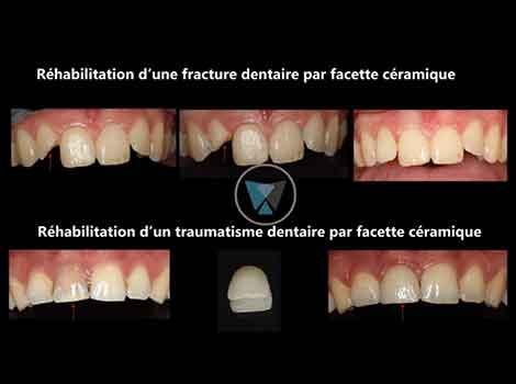 projet-facettes-2-1024x576